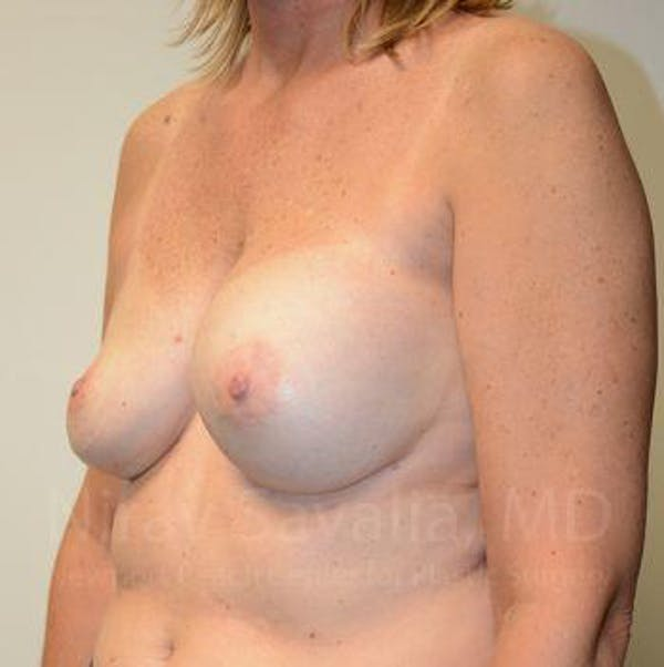 Breast Implant Revision Gallery - Patient 1655547 - Image 9