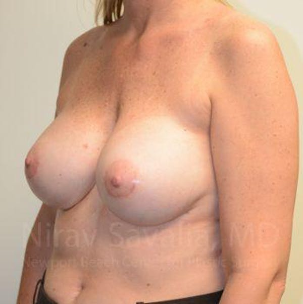 Breast Implant Revision Gallery - Patient 1655547 - Image 10