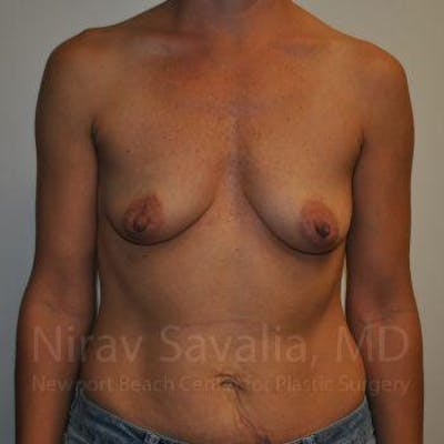 Breast Augmentation Gallery - Patient 1655550 - Image 1