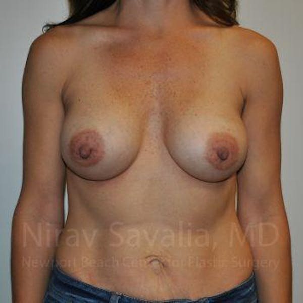 Breast Augmentation Gallery - Patient 1655550 - Image 2