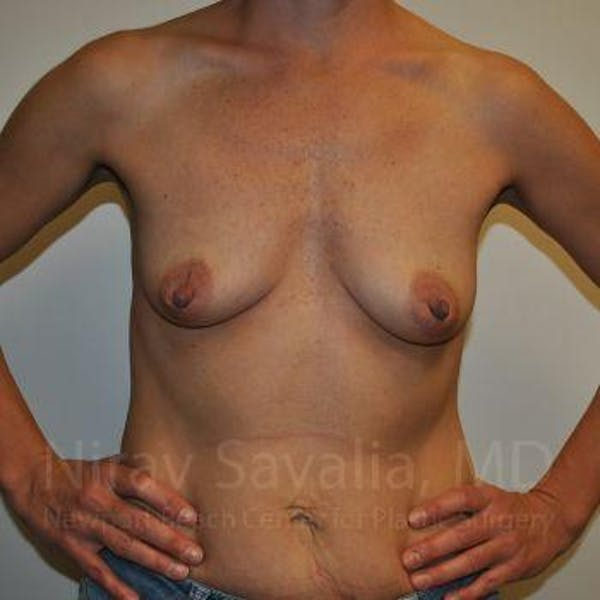 Breast Augmentation Gallery - Patient 1655550 - Image 3