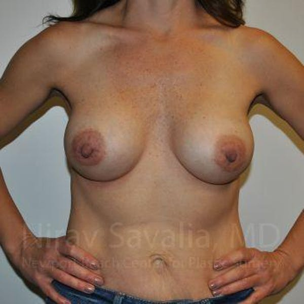 Breast Augmentation Gallery - Patient 1655550 - Image 4
