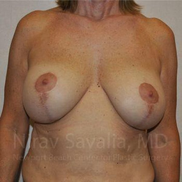 Breast Implant Revision Gallery - Patient 1655552 - Image 1