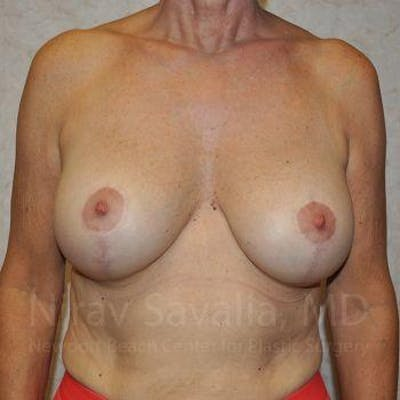 Breast Implant Revision Gallery - Patient 1655552 - Image 2