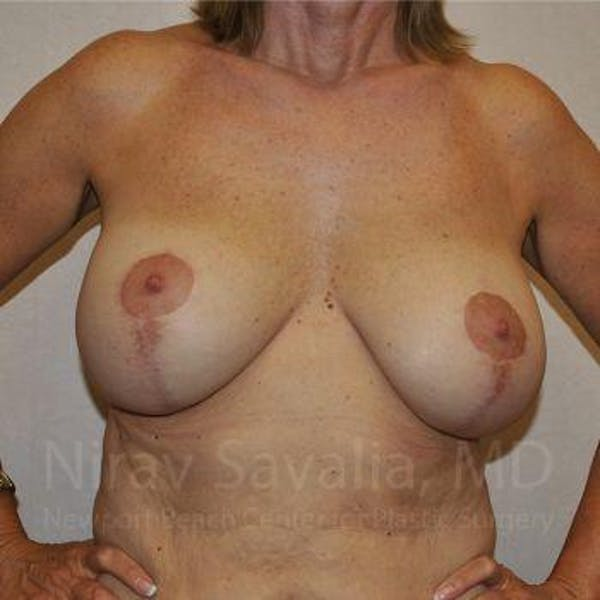 Breast Implant Revision Gallery - Patient 1655552 - Image 3