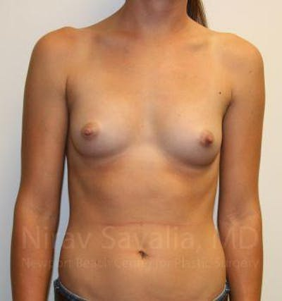 Breast Augmentation Gallery - Patient 1655551 - Image 1