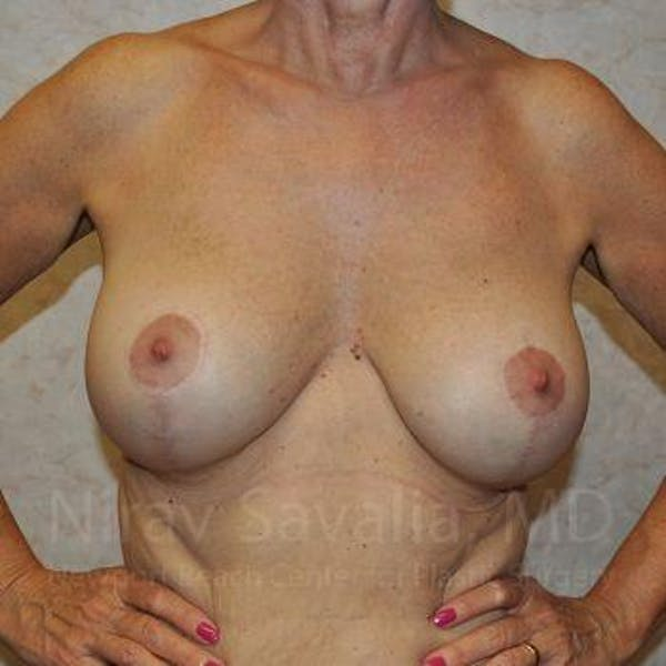 Breast Implant Revision Gallery - Patient 1655552 - Image 4
