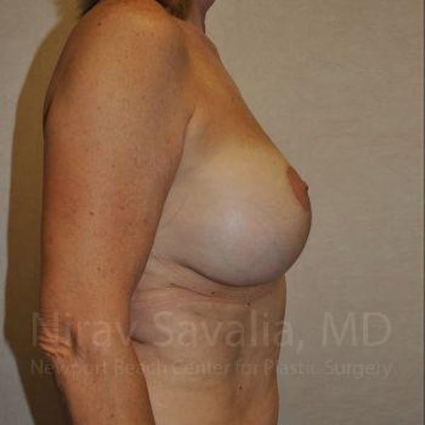 Breast Implant Revision Gallery - Patient 1655552 - Image 7