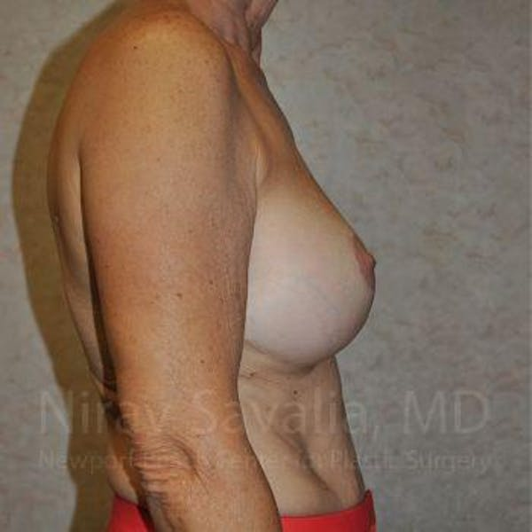 Breast Implant Revision Gallery - Patient 1655552 - Image 8