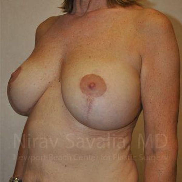Breast Implant Revision Gallery - Patient 1655552 - Image 9