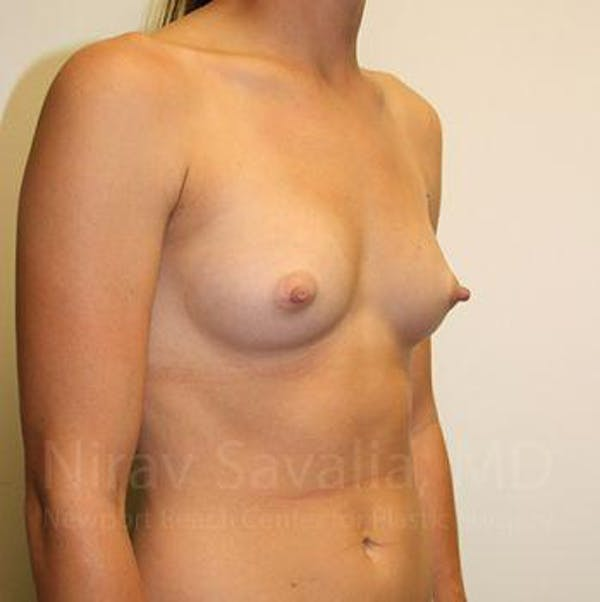 Breast Augmentation Gallery - Patient 1655551 - Image 7
