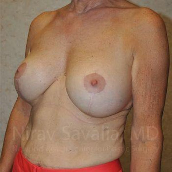 Breast Implant Revision Gallery - Patient 1655552 - Image 10