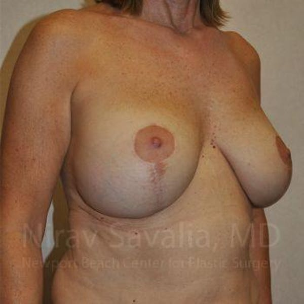 Breast Implant Revision Gallery - Patient 1655552 - Image 11