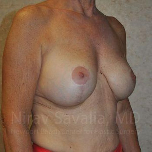 Breast Implant Revision Gallery - Patient 1655552 - Image 12