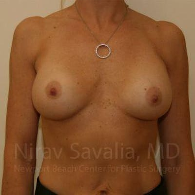 Breast Implant Revision Gallery - Patient 1655556 - Image 1