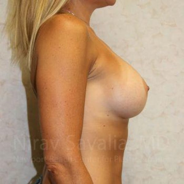 Breast Implant Revision Gallery - Patient 1655556 - Image 4