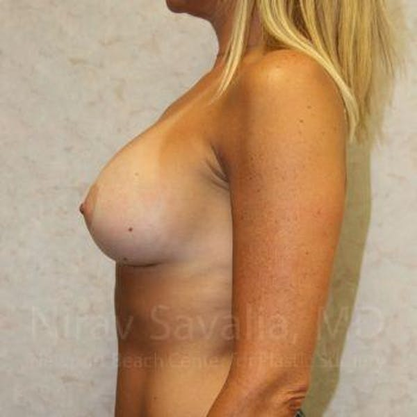 Breast Implant Revision Gallery - Patient 1655556 - Image 6