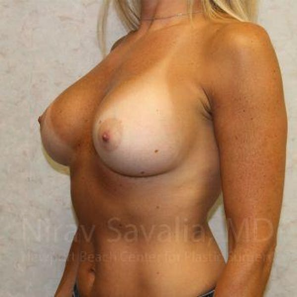 Breast Implant Revision Gallery - Patient 1655556 - Image 8