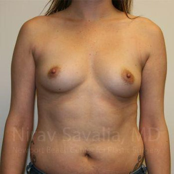 Breast Augmentation Gallery - Patient 1655557 - Image 1