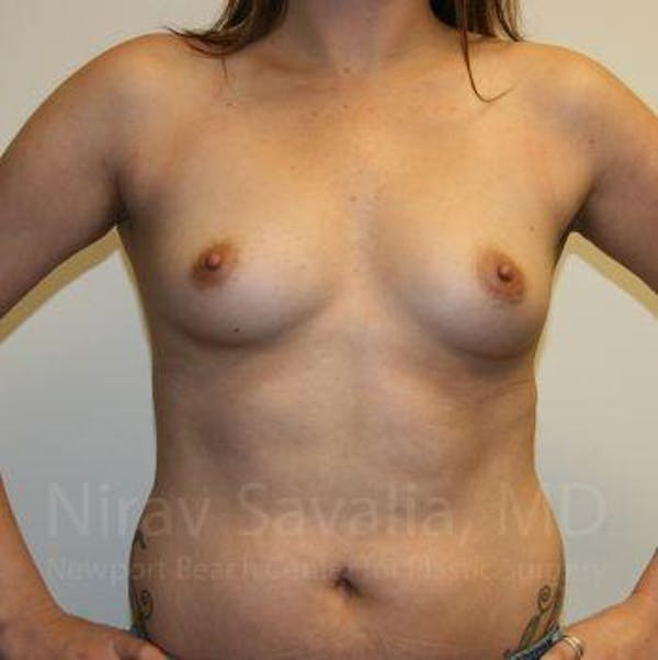 Breast Augmentation Gallery - Patient 1655557 - Image 3