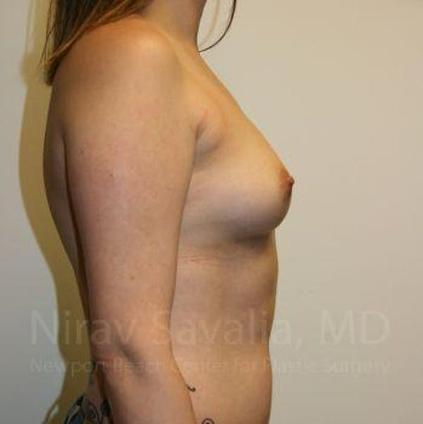 Breast Augmentation Gallery - Patient 1655557 - Image 5