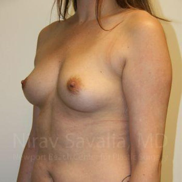 Breast Augmentation Gallery - Patient 1655557 - Image 9