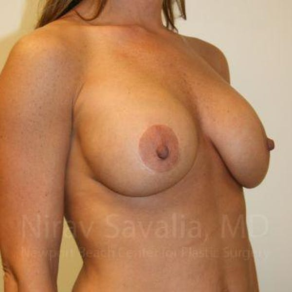 Breast Implant Revision Gallery - Patient 1655558 - Image 7