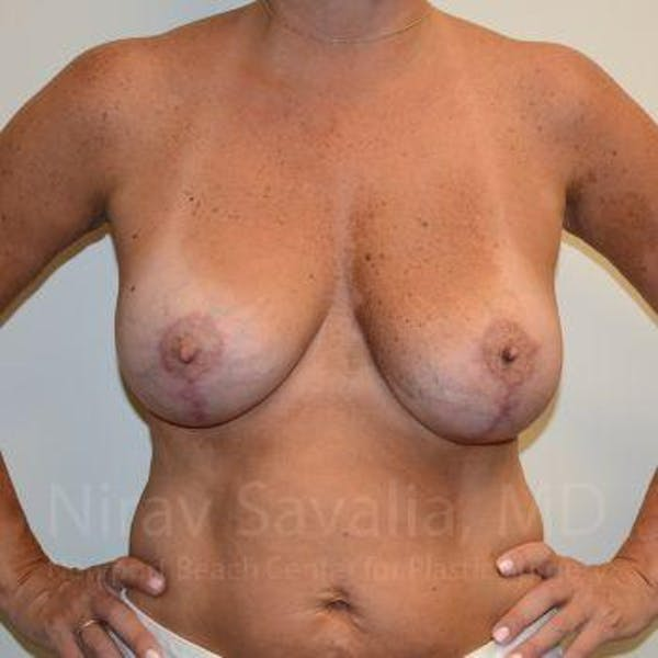 Breast Implant Revision Gallery - Patient 1655560 - Image 2