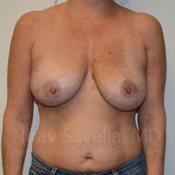 Breast Implant Revision Gallery - Patient 1655560 - Image 3