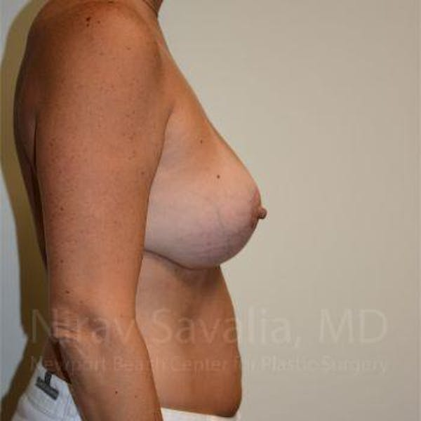 Breast Implant Revision Gallery - Patient 1655560 - Image 8