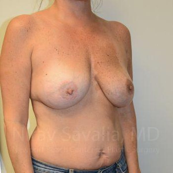 Breast Implant Revision Gallery - Patient 1655560 - Image 9