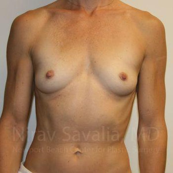 Breast Augmentation Gallery - Patient 1655561 - Image 1