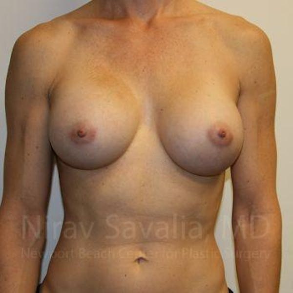 Breast Augmentation Gallery - Patient 1655561 - Image 2