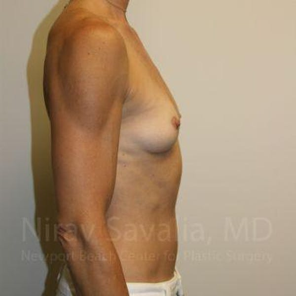 Breast Augmentation Gallery - Patient 1655561 - Image 5