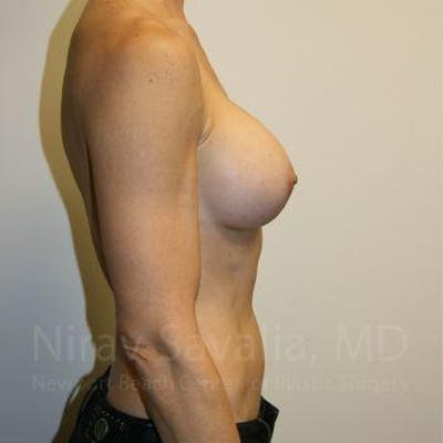 Breast Augmentation Gallery - Patient 1655561 - Image 6