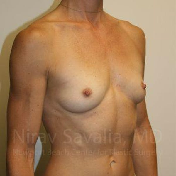Breast Augmentation Gallery - Patient 1655561 - Image 7