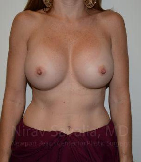 Breast Implant Revision Gallery - Patient 1655562 - Image 1