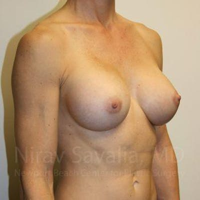 Breast Augmentation Gallery - Patient 1655561 - Image 8