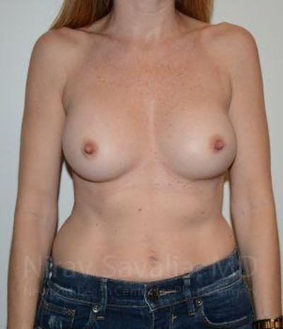 Breast Implant Revision Gallery - Patient 1655562 - Image 2