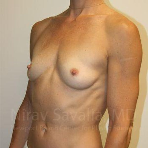 Breast Augmentation Gallery - Patient 1655561 - Image 9