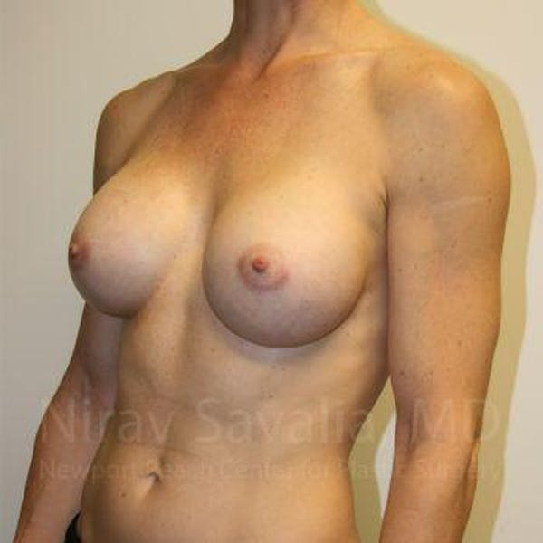 Breast Augmentation Gallery - Patient 1655561 - Image 10