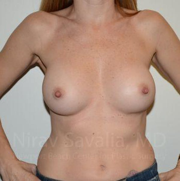 Breast Implant Revision Gallery - Patient 1655562 - Image 4