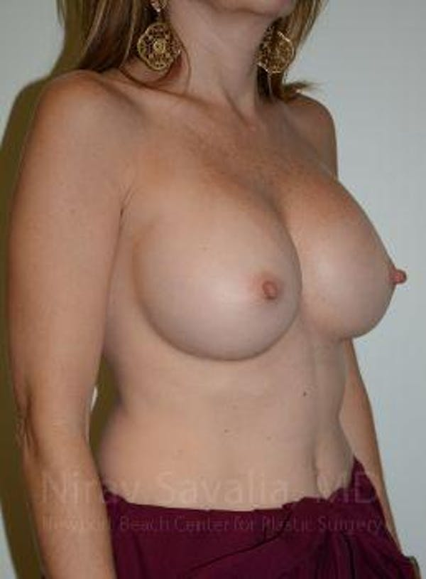 Breast Implant Revision Gallery - Patient 1655562 - Image 11