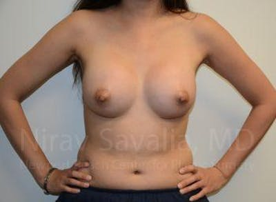 Breast Augmentation Gallery - Patient 1655566 - Image 4