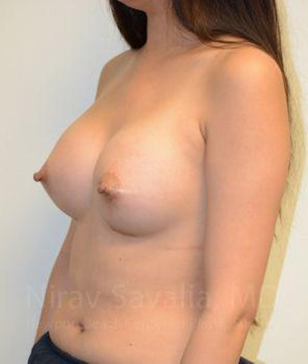 Breast Augmentation Gallery - Patient 1655566 - Image 12