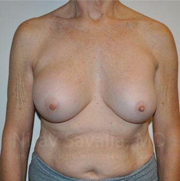 Breast Implant Revision Gallery - Patient 1655567 - Image 1