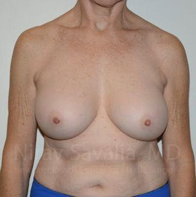 Breast Implant Revision Gallery - Patient 1655567 - Image 2