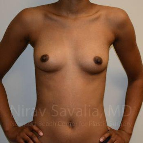 Breast Augmentation Gallery - Patient 1655568 - Image 1