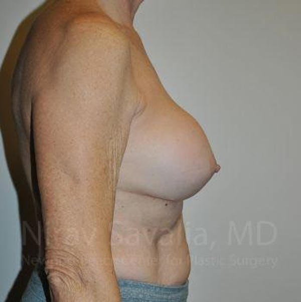 Breast Implant Revision Gallery - Patient 1655567 - Image 3