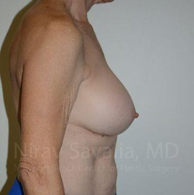 Breast Implant Revision Gallery - Patient 1655567 - Image 4